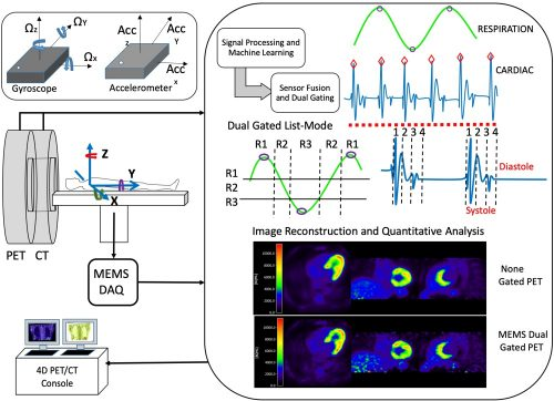 MEMS-based Intrafraction Motion Tracking for PET/CT and Radiotherapy